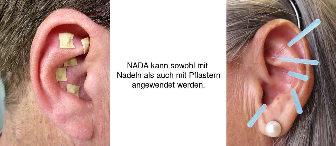 NADA Akupunktur Austria - Start